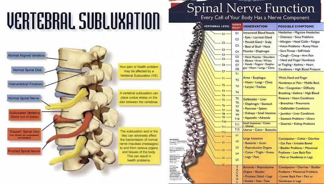 Vertibral Subluxation Spinal Nerve Chart Feldman Wellness Center